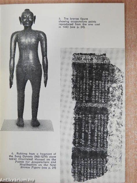 Fu Wei-kang: The story of Chinese acupuncture and